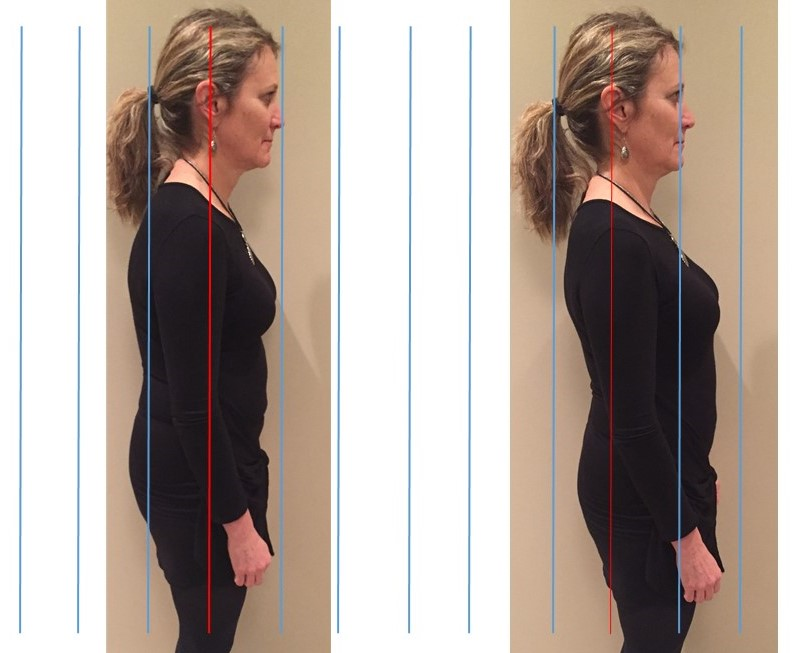 picture of forward head posture